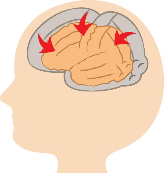 認知症の4種類の型とは(アルツハイマー型、前頭側頭型など)