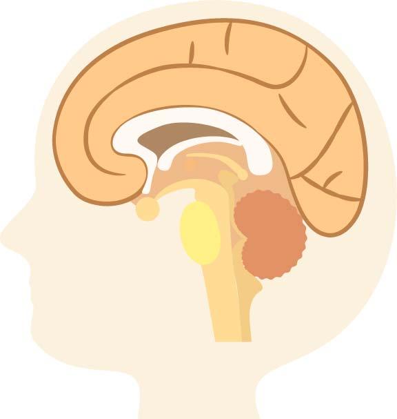 レビー小体型認知症ってどんな症状があるの?