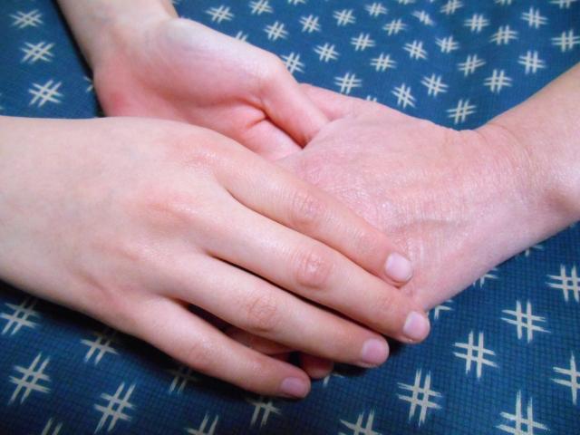 認知症による性的行為(職員や利用者の体を触る)に対する対応